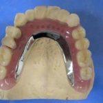 3歯以上の欠損に対するミラクルデンチャー